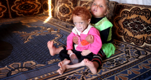 نقص التغذية يهدد حياة عشرات الأطفال في ريف إدلب